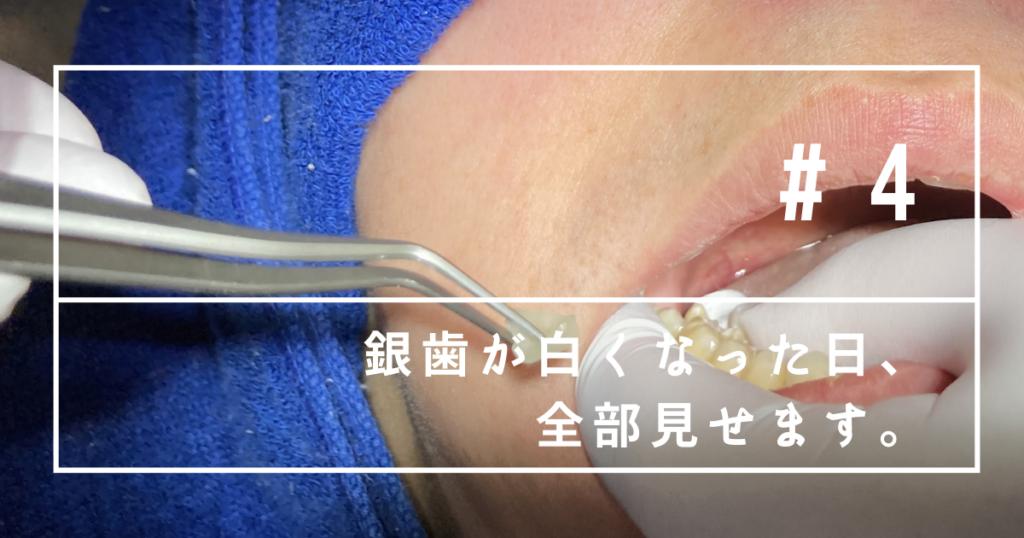 春日原駅前歯科医院で銀歯を白くしました