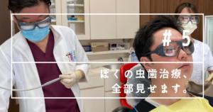 春日原駅前歯科医院で虫歯を治療しました